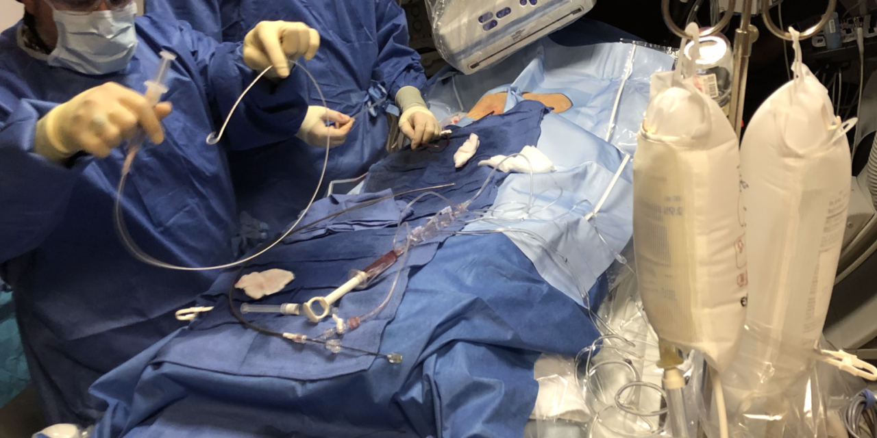Patient Successfully Implanted with CHRISTUS Good Shepherd's Watchman™ Left Atrial Appendage Closure Device